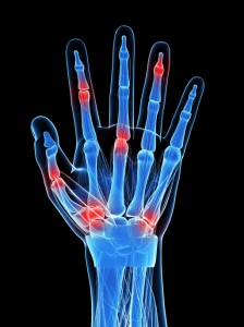 Dr. Boynton is an expert at treating Hand Pain at Sycamore Chiropractic and Nutrition in Blue Ash Ohio