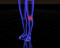 Dr. Boynton is an expert at treating Knee Paiat Sycamore Chiropractic and Nutrition in Blue Ash Ohion