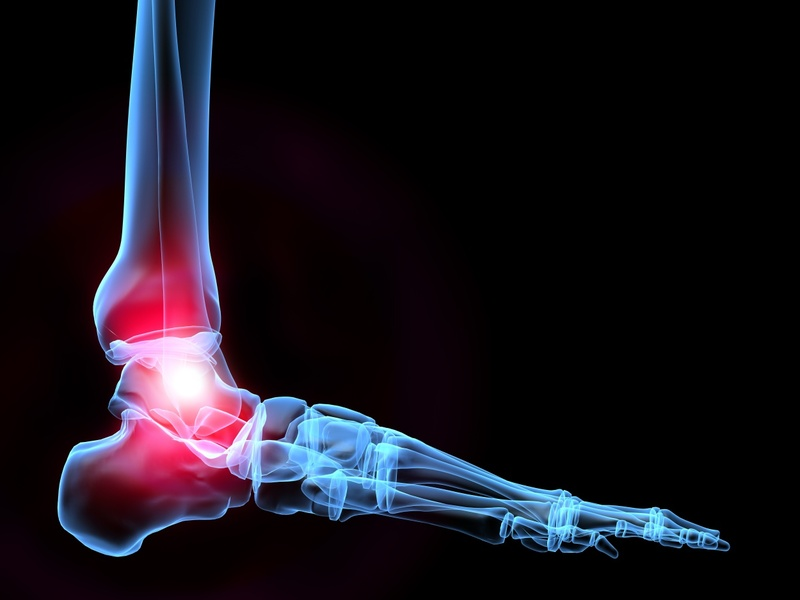Dr. Boynton is an expert at treating Ankle Pain at Sycamore Chiropractic and Nutrition in Blue Ash Ohio