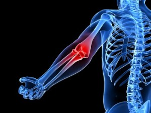 Dr. Boynton is an expert at treating Elbow Pain at Sycamore Chiropractic and Nutrition in Blue Ash Ohio