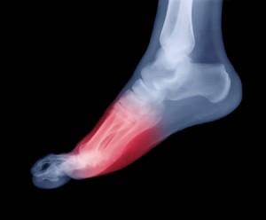 Dr. Boynton is an expert at treating Foot Pain at Sycamore Chiropractic and Nutrition in Blue Ash Ohio