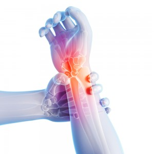 Dr. Boynton is an expert at treating Wrist Pain at Sycamore Chiropractic and Nutrition in Blue Ash Ohio